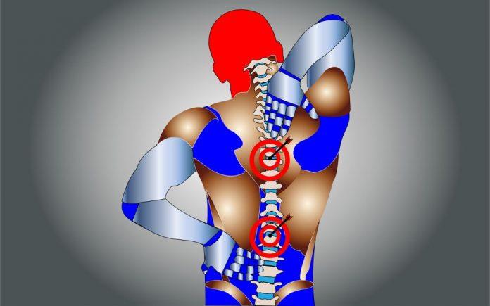 Mal di schiena e cervicale - Shutterstock